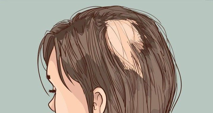 Alopecia como consecuencia de la aplicación de quimioterapia en pacientes oncológicos.